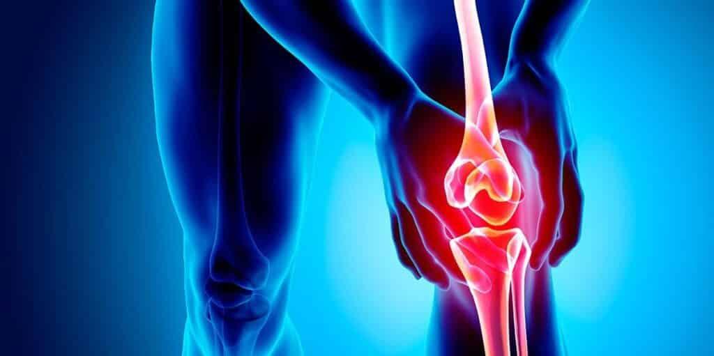 tratamiento fisioterapia sindrome femoropatelar